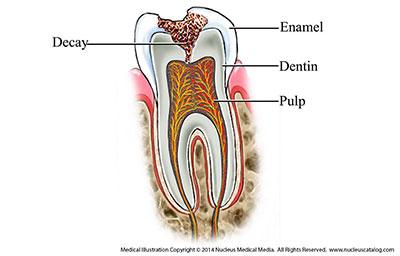 دندان پوسیده