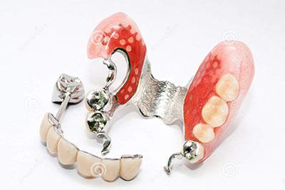 دنچر دندان