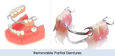 دنچر متحرک دندان