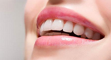 لمینت (ونیر) دندان