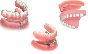 پروتز های دندانی