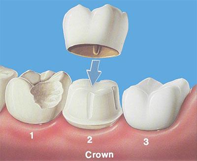 گذاشتن روکش پس از عصب کشی دندان