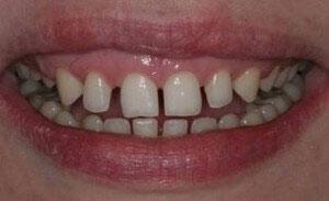 فاصله بین دندانها (دیاستم)