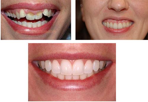 خنده لثه ای یا gum-smile