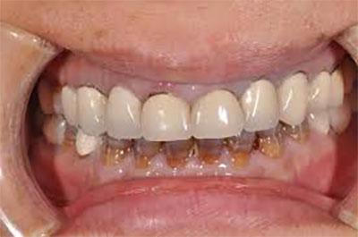 نمای نازیبای دندانهای ترمیم شده