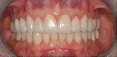 هارمونی دندانها برای داشتن لبخند زیبا