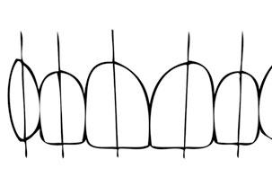 زاویه دندان ها