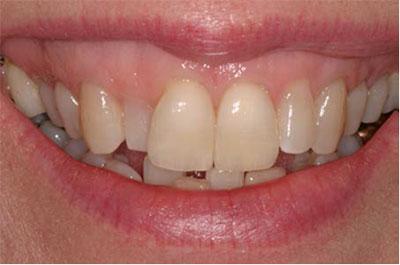 زاویه دندانها در ارزیابی لبخند