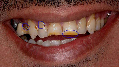 رنگ دندانها در ارزیابی لبخند