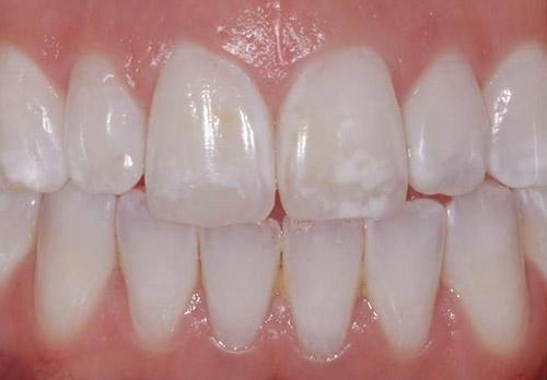 نقاط سفید بعد از سفید کردن دندان