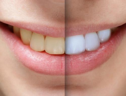 پاسخ به سوالات شایع درباره سفید کردن دندان