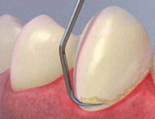 همه چیز درباره جرم گیری دندان