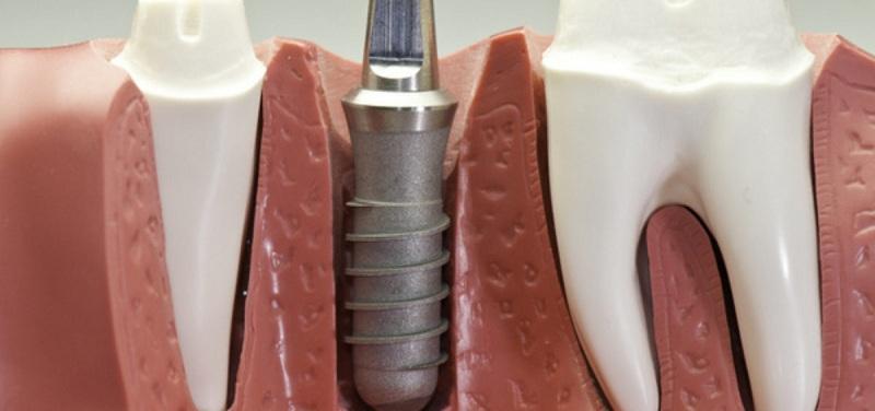 دندان درد در ایمپلنت