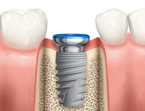 ایمپلنت پانچ چیست ؟ | قیمت پانچ دندان ، کاشت ایمپلنت به روش پانچ